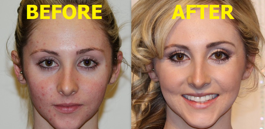 proactive before and after - Tolg.jcmanagement.co