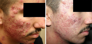 effect of acne