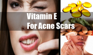 vitamin for acne