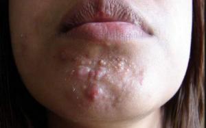 white acne